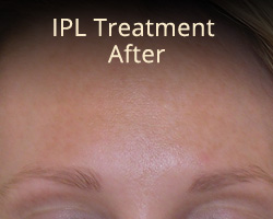 IPL-Treatment-After